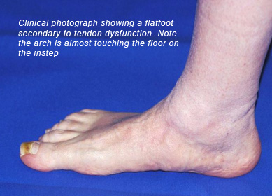 Flat Feet Treatment at the North West Foot and Ankle Clinic