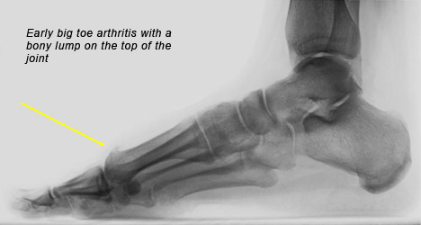 Arthritis of the Big Toe Treatment